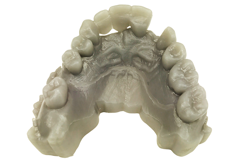 Upper 3D Printed Model