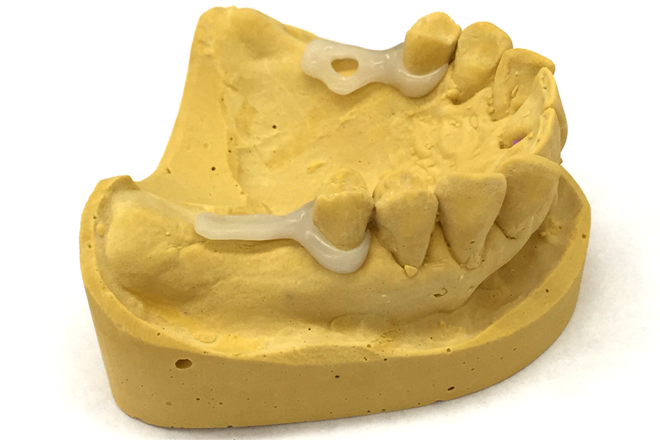 Acetal Resin Clasps for Acrylic Denture