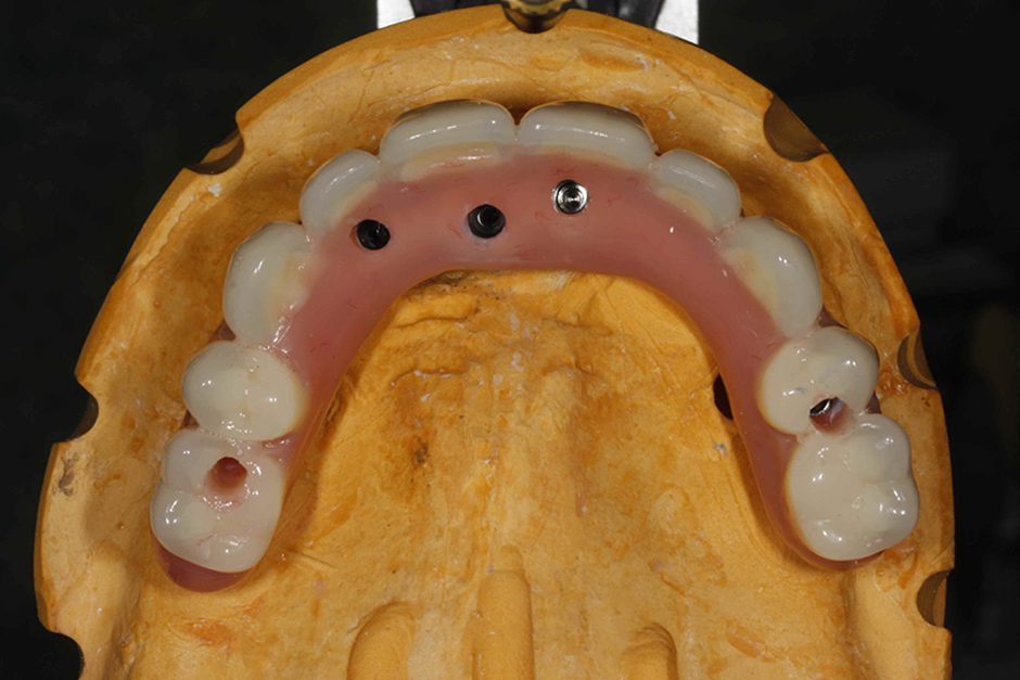 Occlusal view of excess holes. Its important that the implants be angled slightly palataly. This angle can be corrected with low profile abutments at stage 2.Or low profile abutments placed with a slight palatal angle so screw access does show buccally