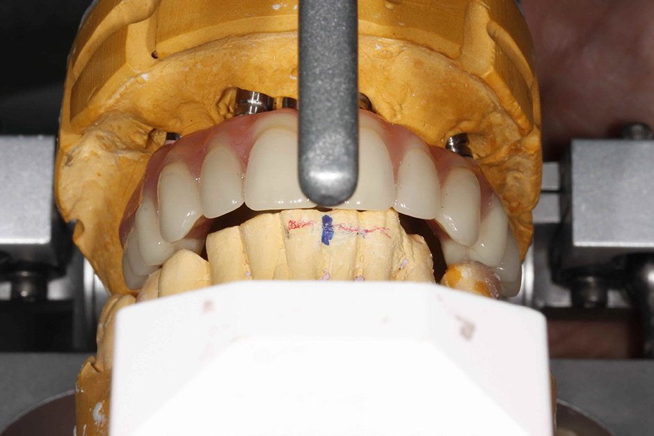 Photo Anterior view showing the overbite and overjet on the articulator. .