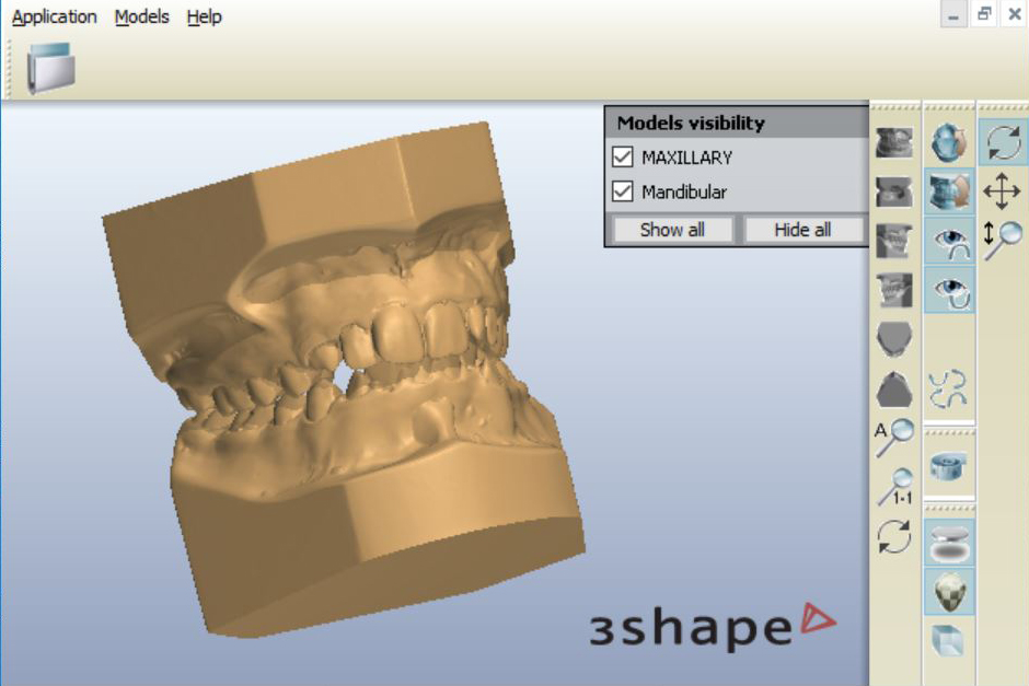 Orthodontic Atriculated 3D Scans