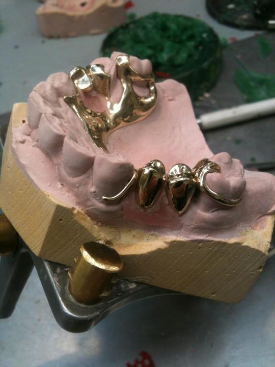 Gold teeth ready to be added to gold framework