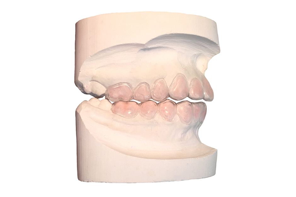 Bleaching Trays with Reservoirs