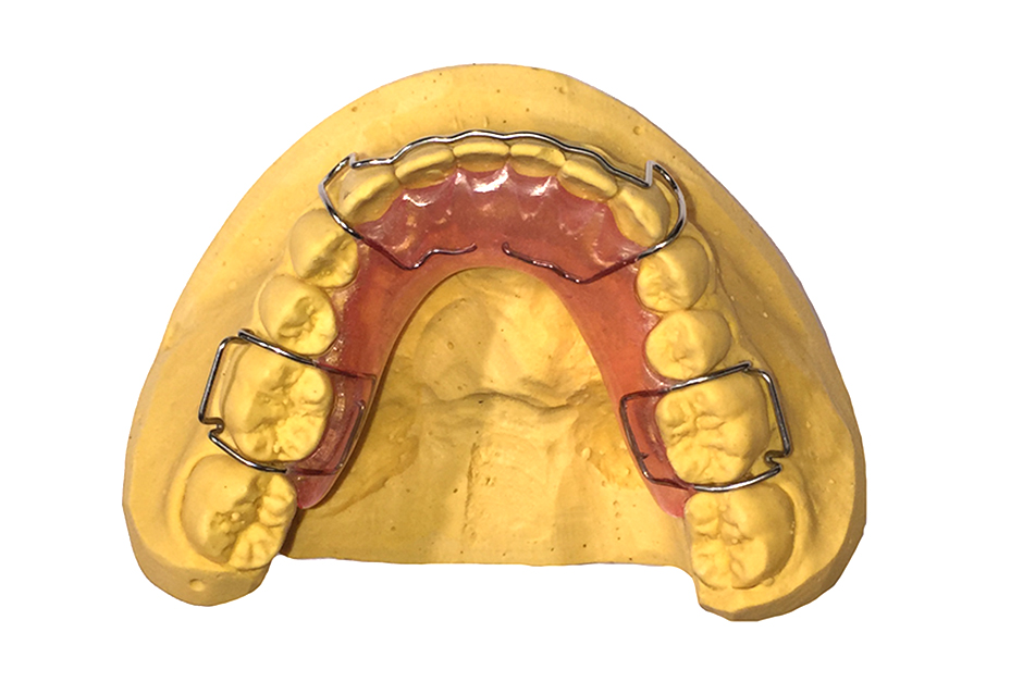 Removable Hawley Retainers