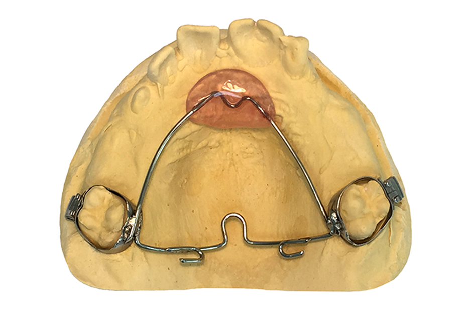 Orthodontic Fixed Retainer