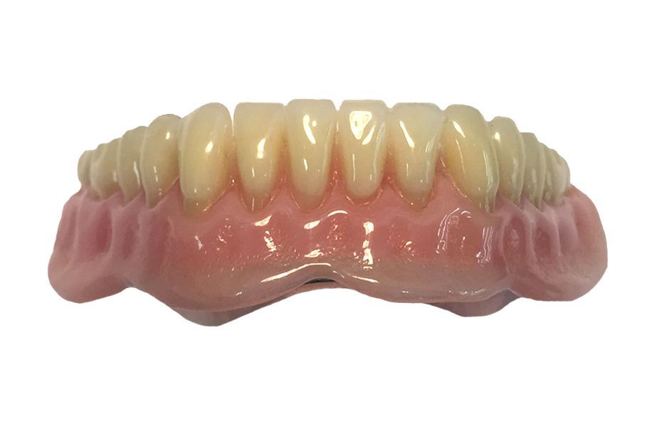 Overdenture Beam with Ceka Attachments