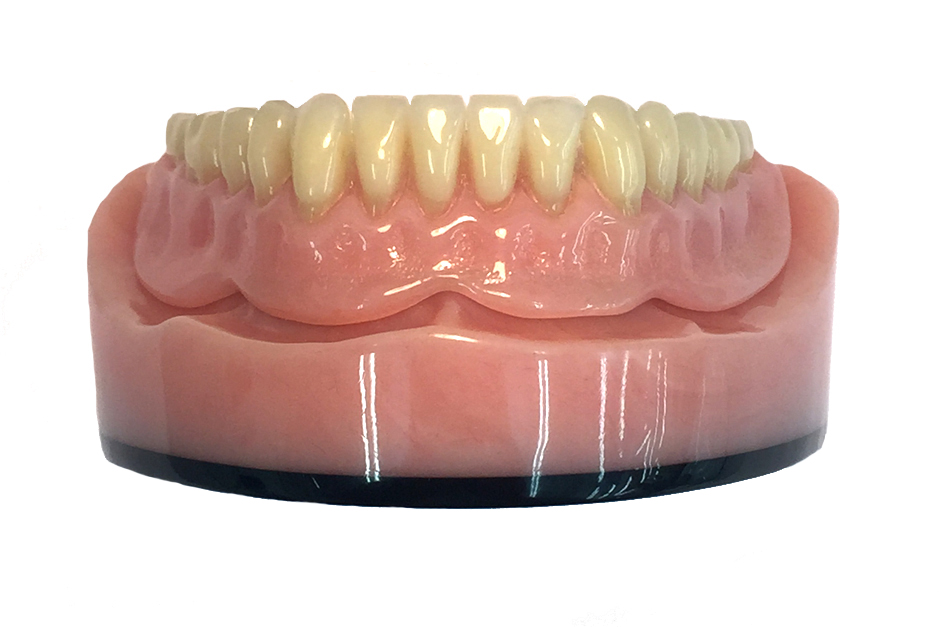 Overdenture with Beam and Ceka Attachments