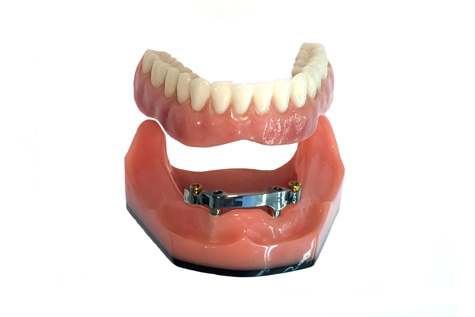 Overdenture Milled Beam with Locator Abutments