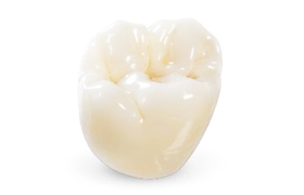 Dentine Bonded Crowns and Veneers