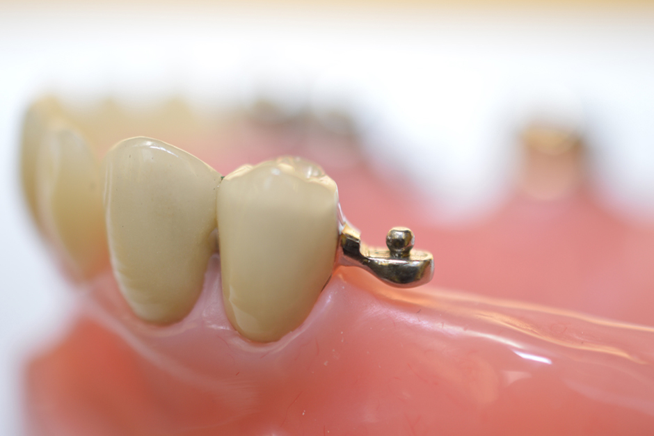 Crown with Distal Rhein Attachment