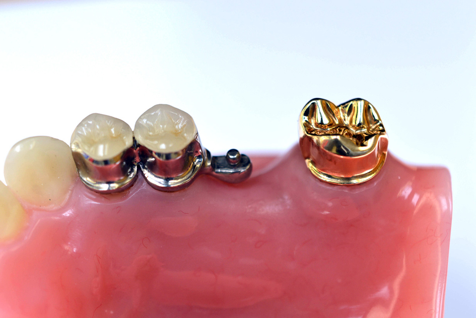 Milled Crowns with Rhein Attachment