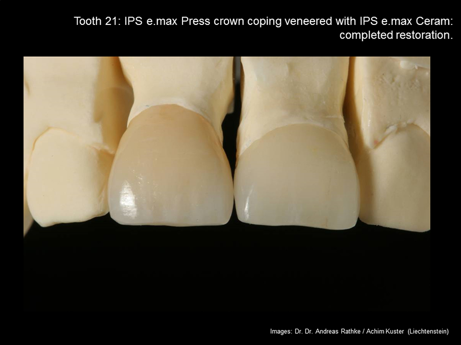 Adhesive Cementation of Lithium Disilicate IPS e.max Press