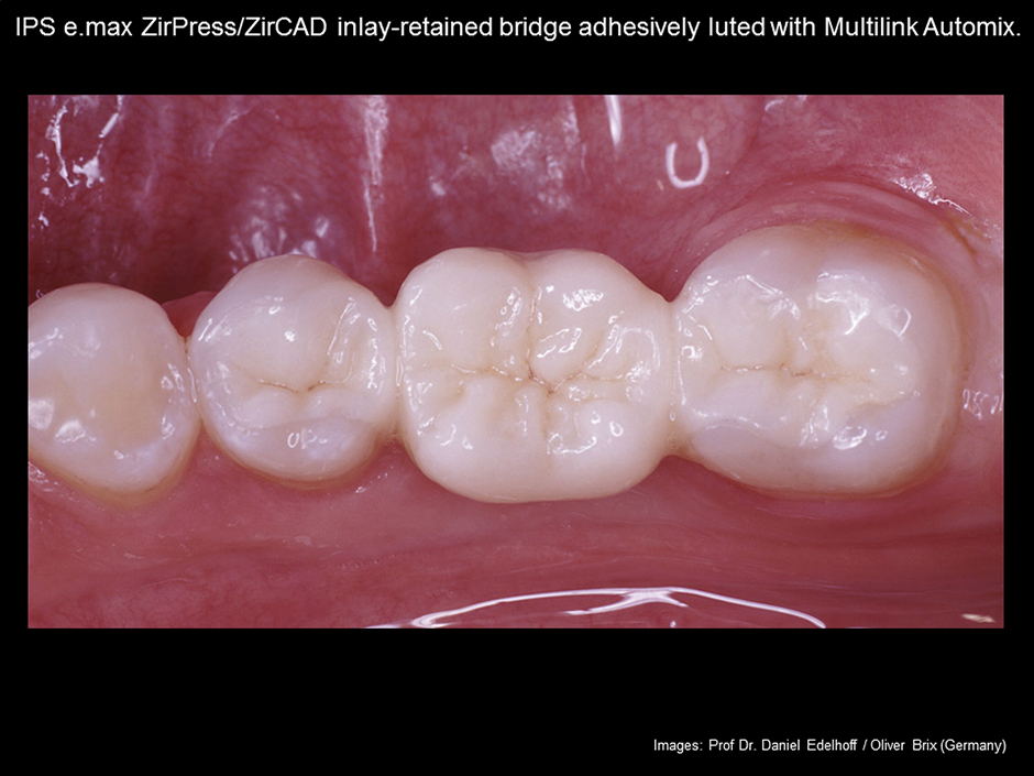 e.max Adhesive Cementation of Zirconium Oxide Pressed onto ZirPress