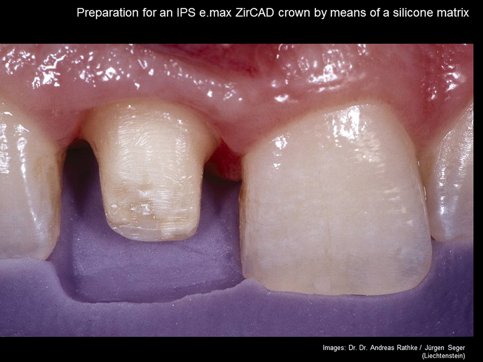Conventional Cementation of ZirKonium Oxide Veneered e.max Ceram