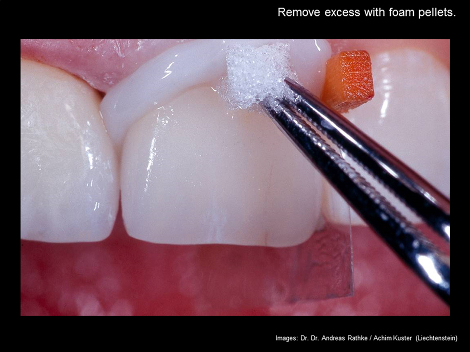 Adhesive Cementation of Layered IPS e.max Ceram Veneer