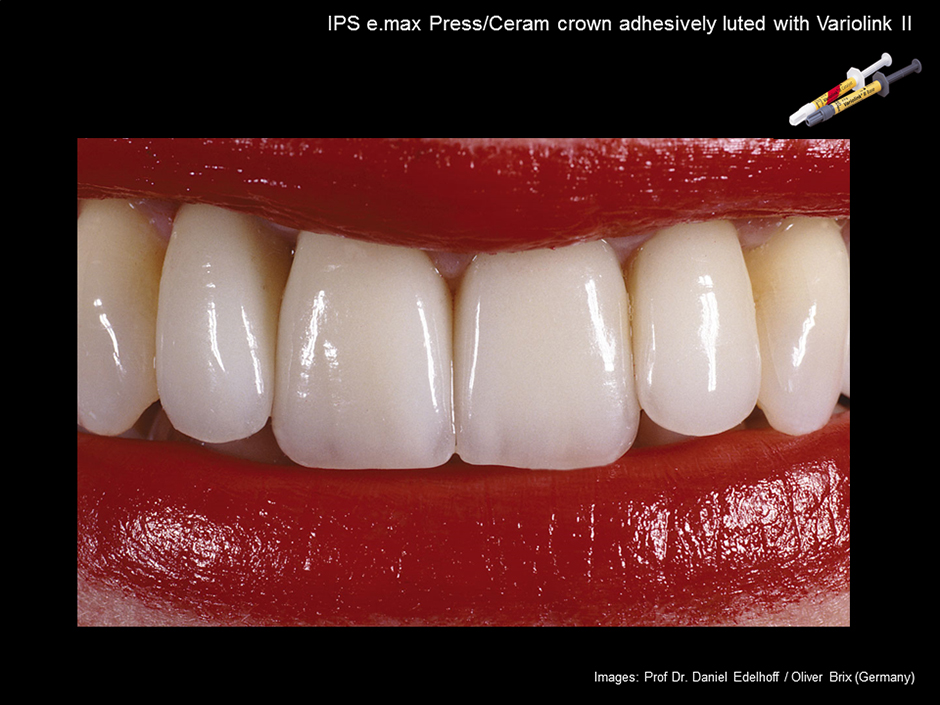e.max Adhesive Cementation of IPS e.max Press