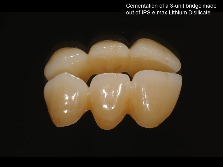 Self-Adhesive Cementation of Lithium Disilicate IPS e.max Press