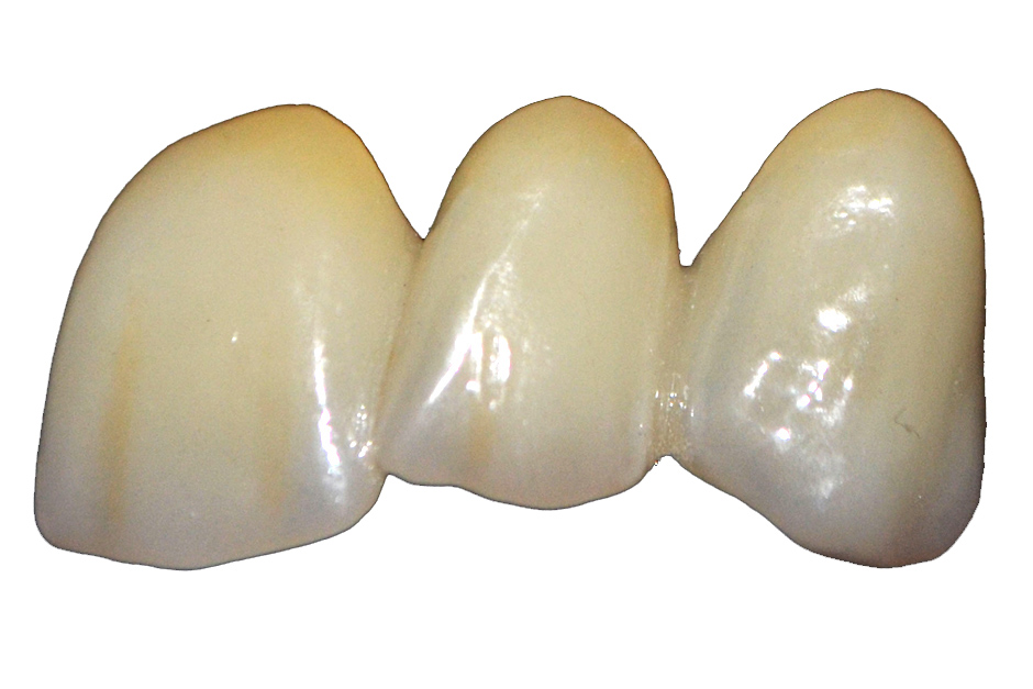 Translucent Zirconia Anterior Bridge