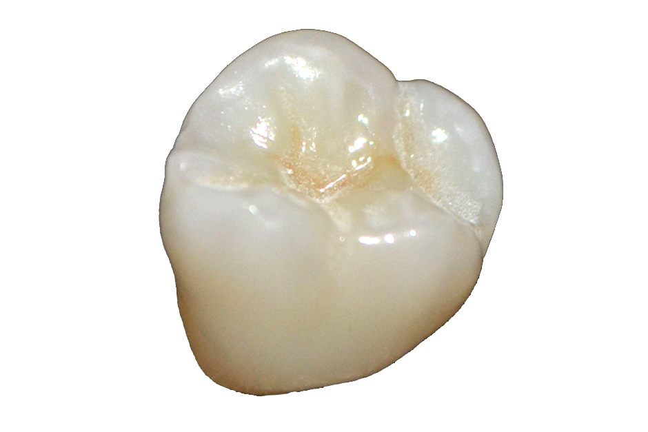 Translucent Zirconia Posterior Single Unit